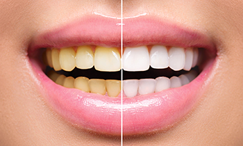Welcome this summer with a whiter smile. Pearl Dental Clinic - Dubai now offers Zoom! Teeth Whitening for AED 499!! .