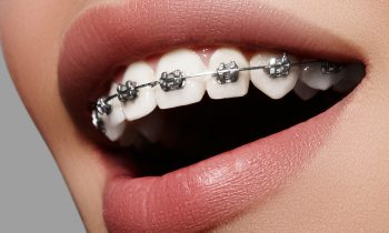 Dental braces at best price in Dubai? Get the best braces at Avance Dental. Looking for dental braces in Dubai? Get the best braces at Avance Dental. View Services. Advanced Technologies. Book An Appointment. Services: Braces, Invisible Aligners, Dental Care, Braces in Dubai, Best Orthodontist in Dubai, Affordable Braces, Cheap Braces. Best Orthodontist Specialist Dubai. Checkout Braces Fee. Convenient Location. Expert Braces Clinic. Get A Free Consultation. Services: Teeth Braces, Metal Braces, Braces, Orthodontist.,Braces in Dubai, Best Orthodontist in Dubai, Affordable Braces, Cheap Braces. Best Orthodontist Specialist Dubai. Expert Braces Clinic. Checkout Braces Fee. Get A Free Consultation. Convenient Location. Services: Teeth Braces, Metal Braces, Braces. Metallic braces in affordable price in Dubai by Indian dentist